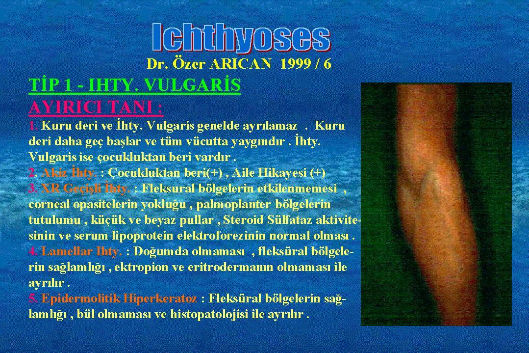 Ichthyosis06