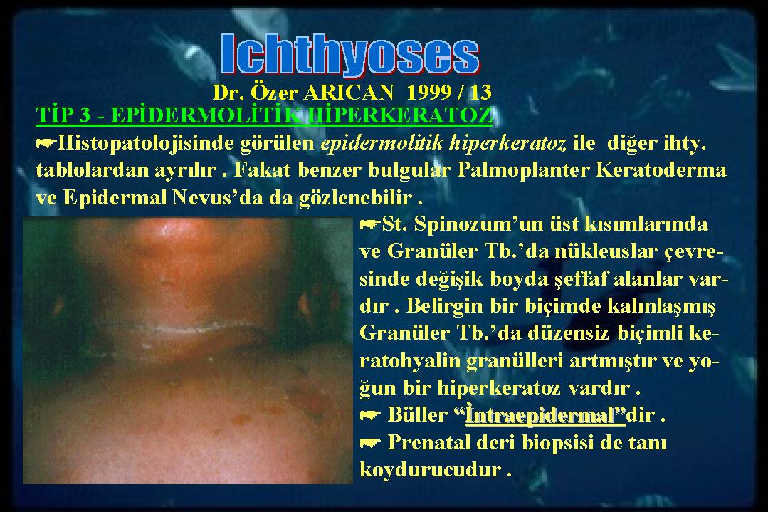 Ichthyosis13