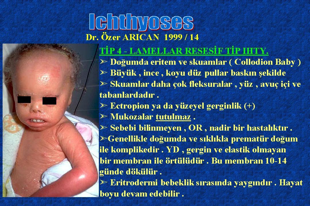 Ichthyosis14