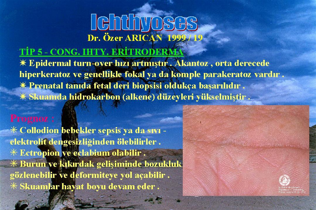 Ichthyosis19