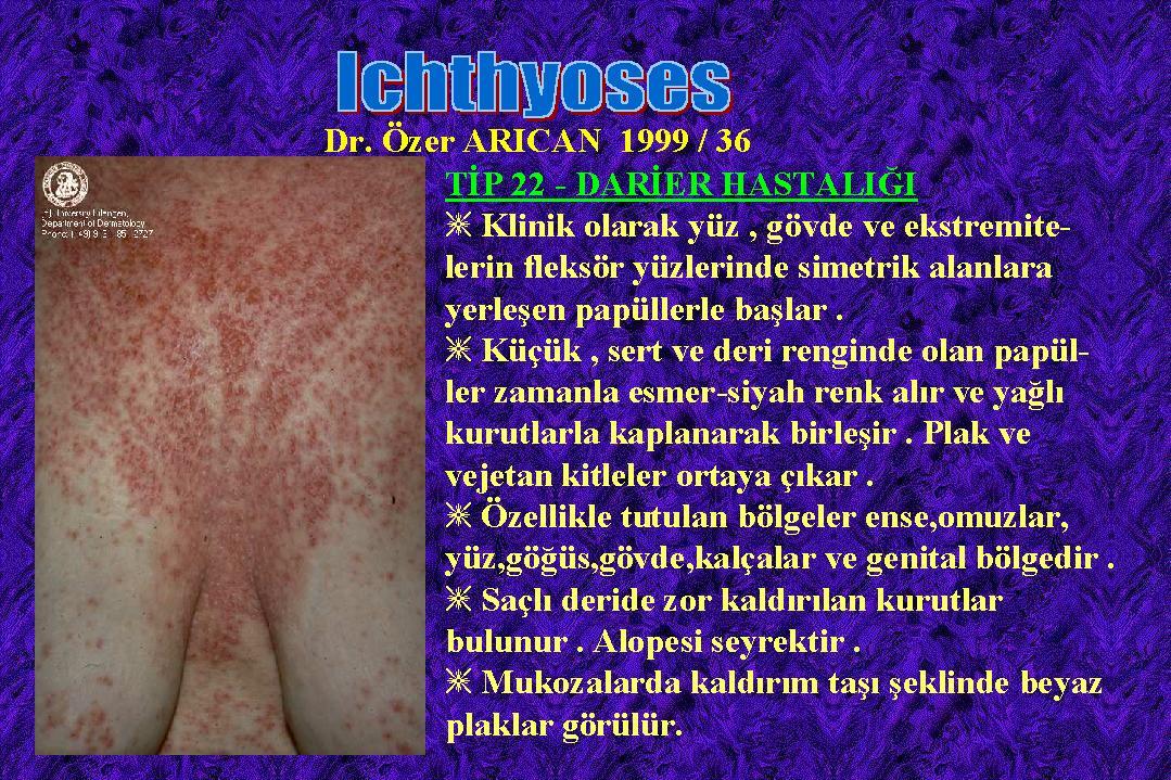 Ichthyosis36